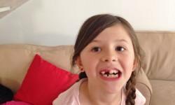 Lite panik, men annars gick det snabbt för tandläkaren att dra ut två tänder.